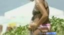Brazília a mellplasztika őshazája